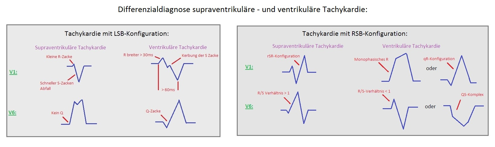 265 Differenzialdiagnose SVT VT