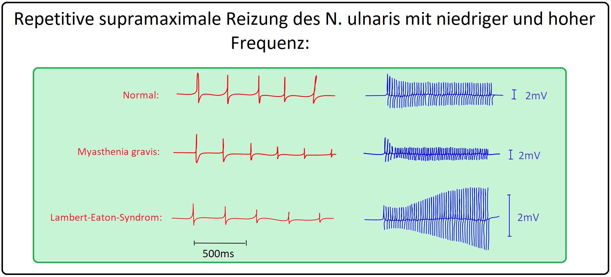 056 Repetitive supramaximale Reizung des N. ulnaris mit hoher